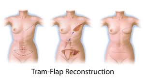 tram-flap
